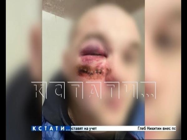 Расстрел в воспитательных целях два человека пострадали один стал калекой