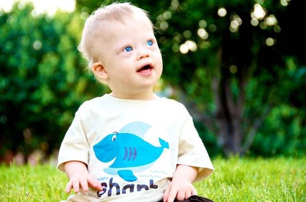 Можно ли избежать рождения ребенка с синдромом дауна, изображение №3