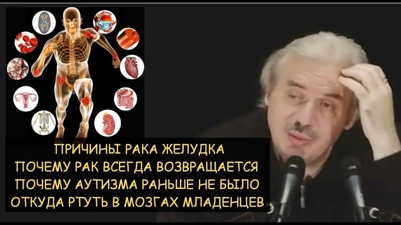 Н.Левашов: Почему рак всегда возвращается. Причина рака желудка. Откуда аутизм и ртуть в мозгах