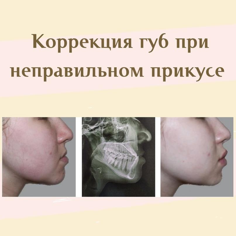 Губы и область вокруг рта., изображение №10