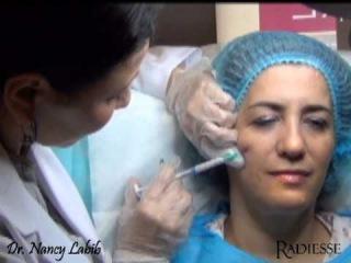 Fluid Facelift - with RADIESSE Dermal filler. Demonstrated by Dr. Nancy Labib