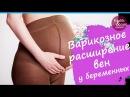 Варикозное расширение вен у беременных. Тома Власова