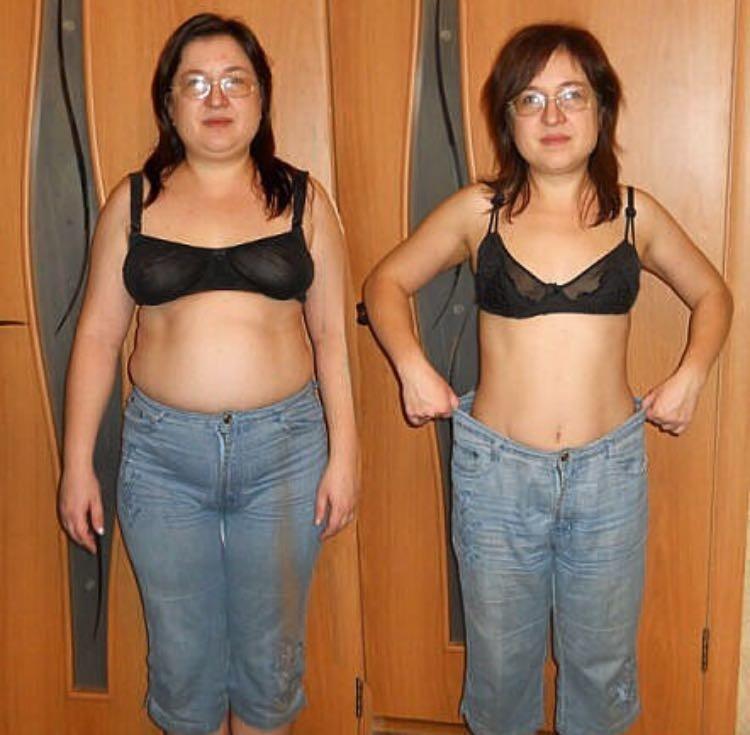 Последствие Похудения Фото.