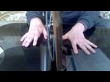 11 мес. после инсульта - пальцы кисти 1