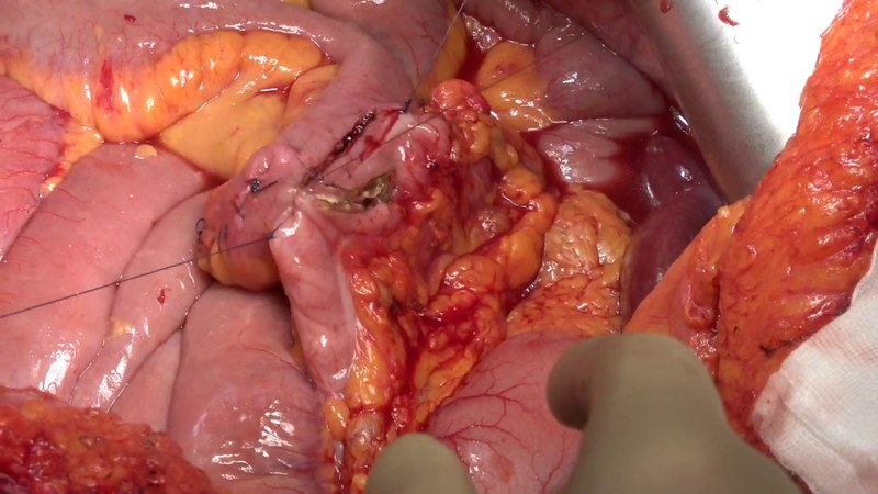 Intestinal anastomosis after CRS and HIPEC double layered technique