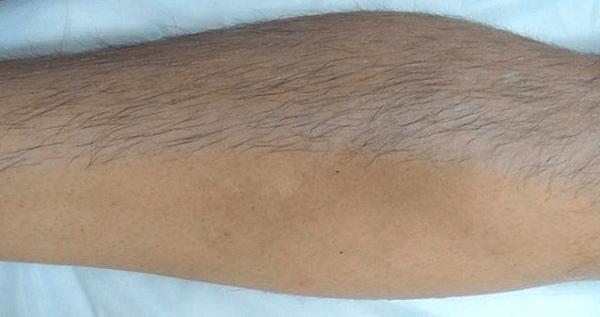 Если волосы на руках темные, то удалить их поможет паста средней плотности