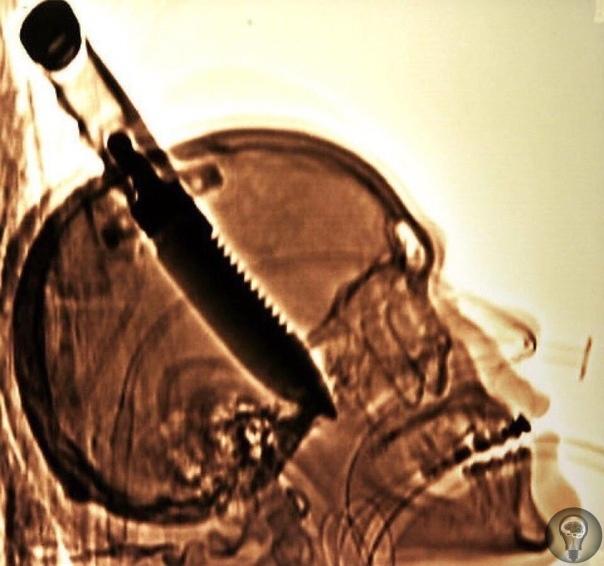 Рентген черепа Майкла Хилла, которого в 1998 году ударили в голову 8-дюймовым ножом и нож прошёл прямо в мозг