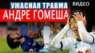 Ужасная травма Андреа Гомеша после фола Сон Хын Мина в матче Тоттенхэм 1-1 Эвертон    ВИДЕО