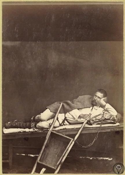 Лежащий на нарах и прикованный к тачке каторжанин. Нерчинская каторга, Забайкальская область, Российская империя, июль 1891