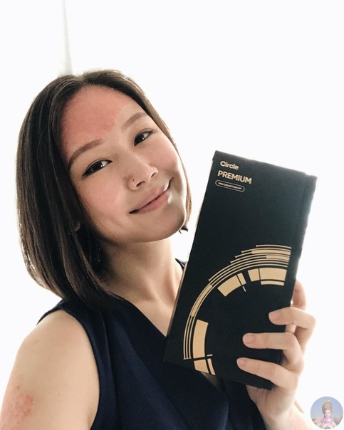 ocyie Wong рассказывает о повседневной жизни с псориазом: как облегчить течение болезни и принять себя при всех
