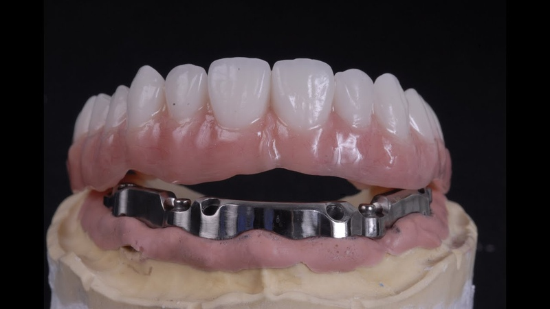 All on 4 implant bar supported denture