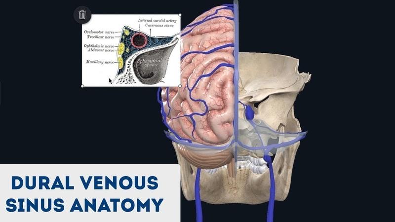 Dural Venous Sinuses 3D Anatomy Tutorial