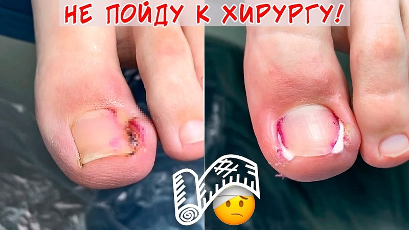 Вросший ноготь и гной под ногтем Горький опыт обращения к хирургу