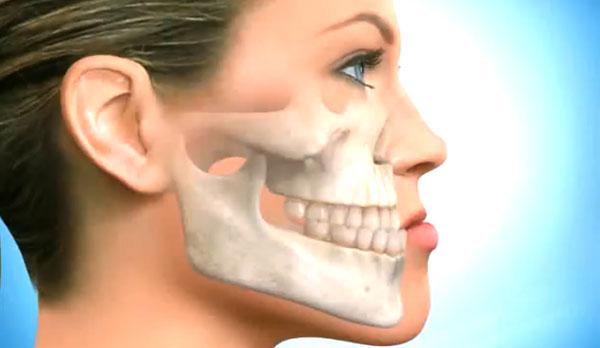 Что такое рак челюсти?