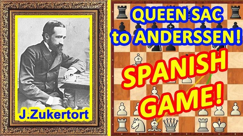 Chess TRAPS in the Spanish Game opening ♔ Zukertort vs Anderssen ♕ QUEEN Sac