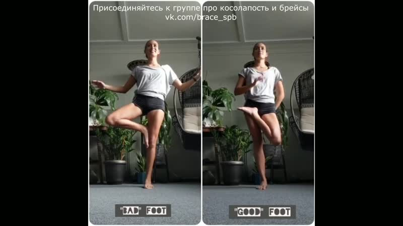 Покорение косолапости с помощью йоги (косолапость метод Понсети брейсы)
